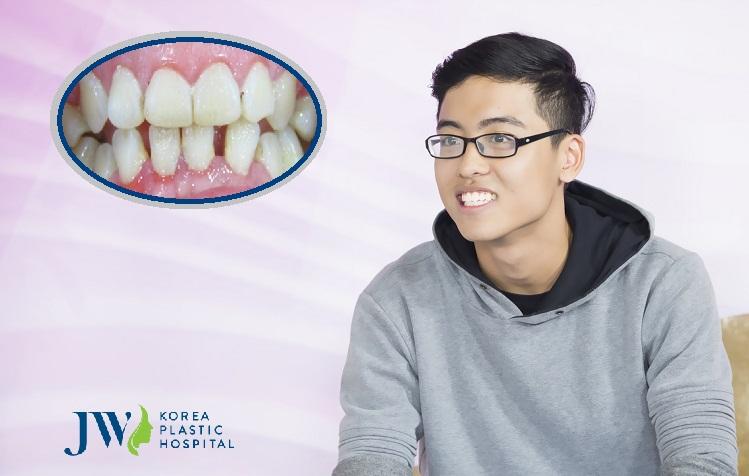 KH niềng răng