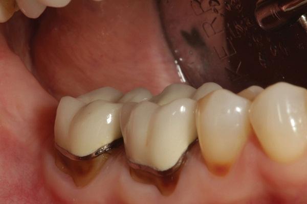 Biến chứng thường gặp khi bọc răng sứ không đúng quy trình