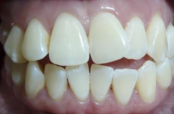 bọc răng sứ khập khểnh