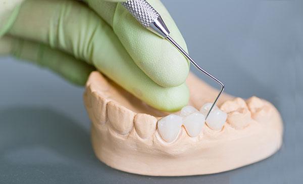Bọc răng sứ cho răng khấp khểnh cũng như bọc sứ cho những trường hợp răng khuyết điểm khác trên cung hàm