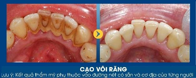 Hình ảnh khách hàng trước và sau khi lấy cao răng tại JW