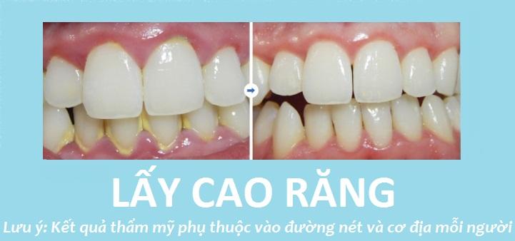 Hình ảnh khách hàng thực hiện lấy cao răng tại Nha khoa JW