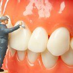 Lấy cao răng bao nhiêu tiền?|Bảng Giá Lấy Cao Răng Chuẩn Nhất 2018