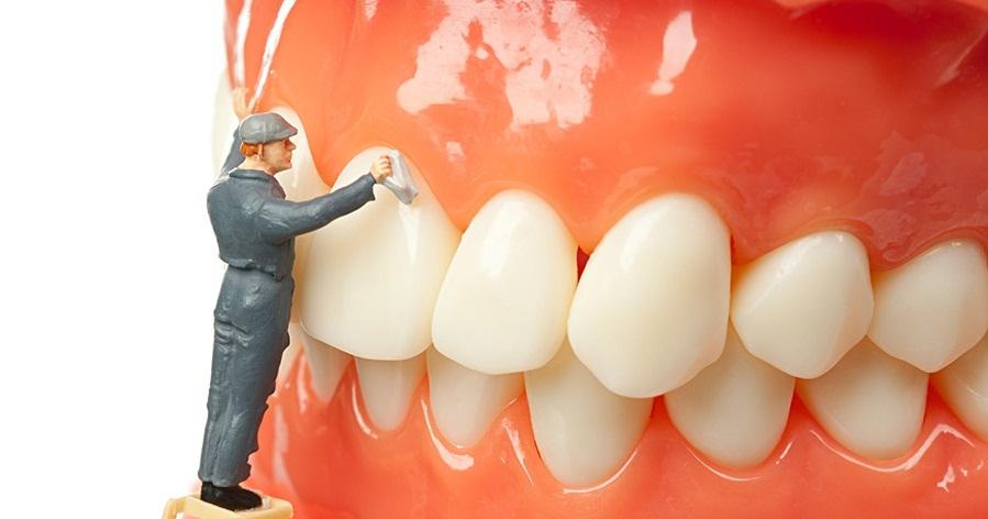 Lưu ý khi lấy cao răng