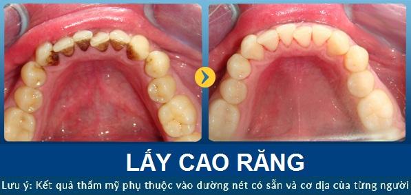lay-cao-rang-jw