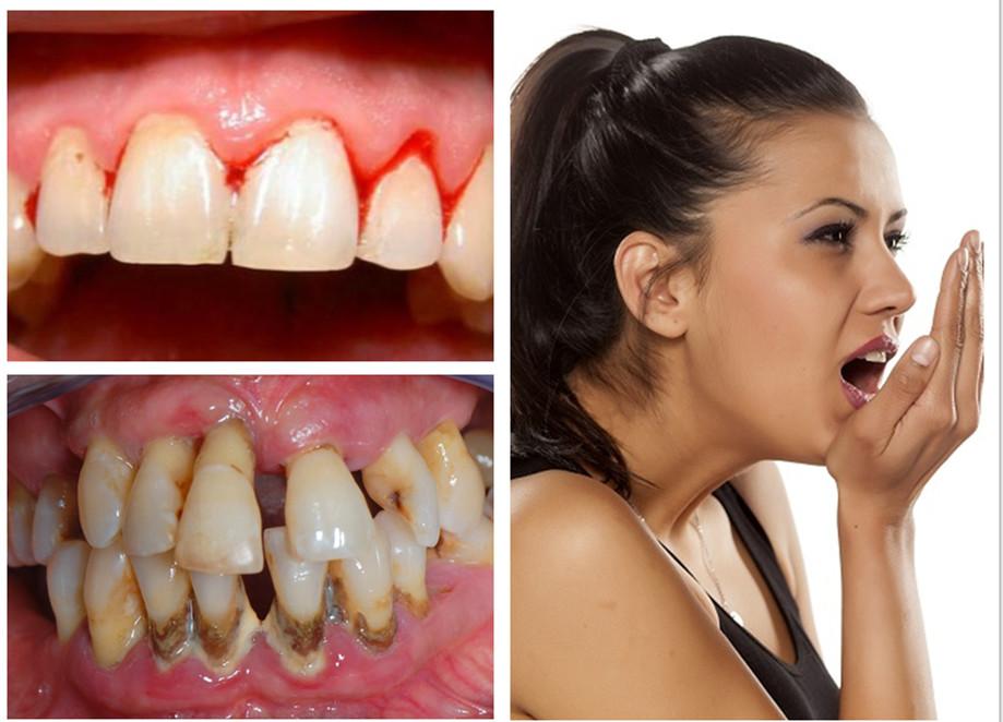 Cao răng là nguyên nhân khiến răng miệng gặp phải vấn đề nghiêm trọng