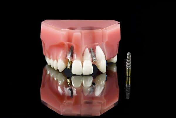Công nghệ cấy ghép răng Implant ra đời và nhanh chóng trở thành giải pháp tối ưu để phục hình răng bị mất trên cung hàm