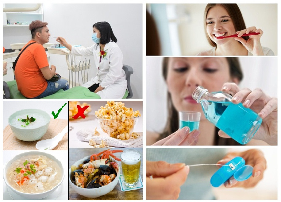 chăm sóc răng miệng hợp lý