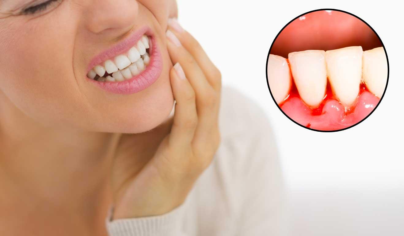 Đau nhức hay chảy máu sẽ không xảy ra khi bạn thực hiện lấy cao răng bằng máy siêu âm