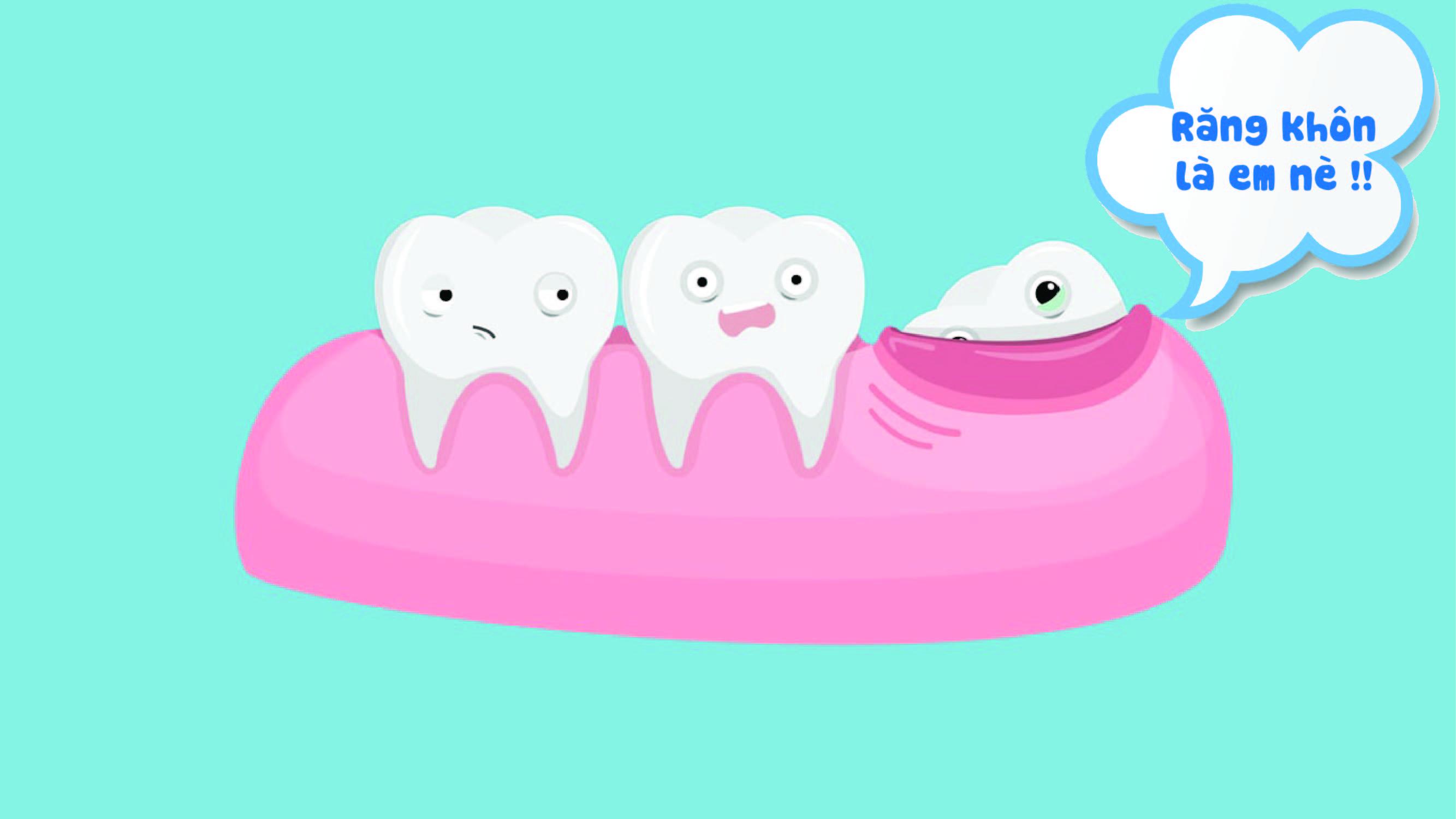 dấu hiệu của việc mọc răng khôn là gì