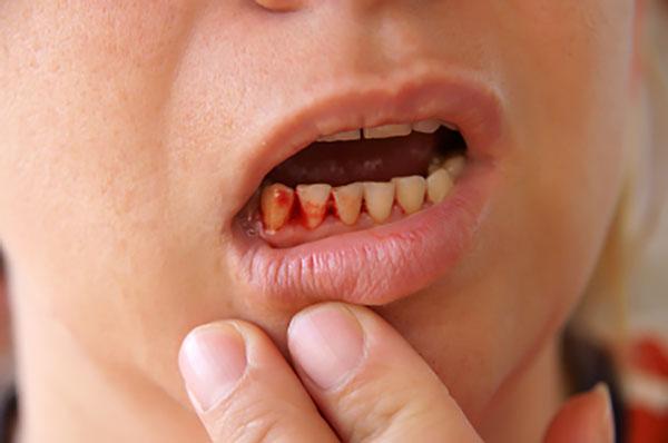 Chảy máu sau khi lấy cao răng là tình trạng rất hay gặp phải