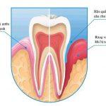Biểu hiện của bệnh nha chu  | Bác sĩ Nha Khoa Hàn Quốc tư vấn