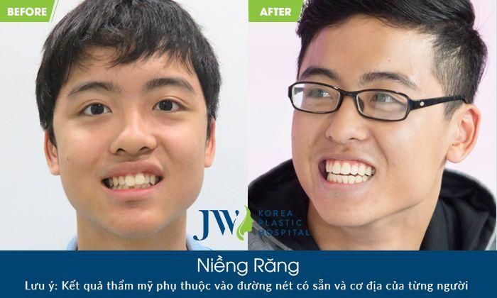 Hình ảnh khách hàng sử dụng Công nghệ Nha Khoa 4.0 JW
