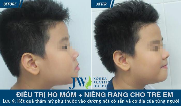 Hình ảnh Niềng răng cho trẻ em