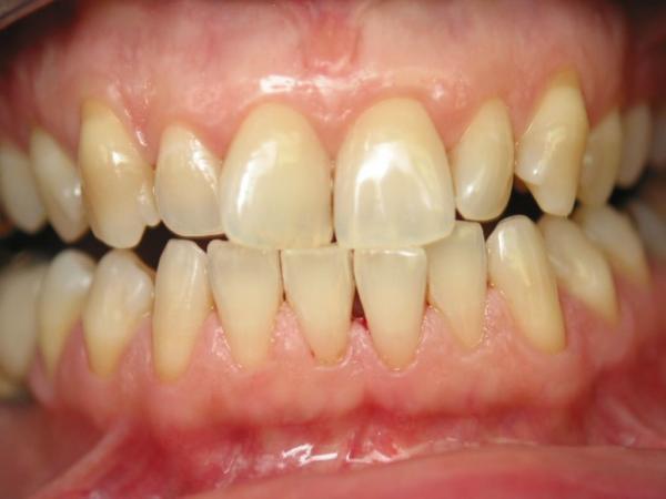 Răng mọc khấp khểnh không chỉ khiến cung hàm mất đi nét thẩm mỹ mà còn là nguyên nhân khiến răng mắc phải các bệnh lý răng miệng
