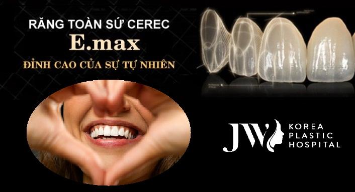 Răng sứ Emax cũng rất được ưa chuộng đối với những khách hàng thực hiện mặt dán sứ Veneer