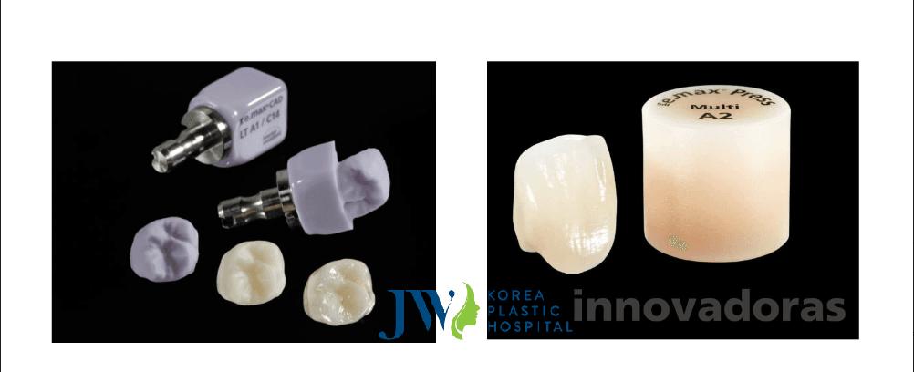 Sứ Emax có độ bền cao và cứng chắc hơn những loại răng sứ khasc