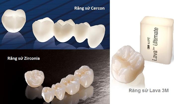 Các dòng răng toàn sứ được nhiều người lựa chọn để bọc răng sứ cho răng khấp khểnh hiện nay