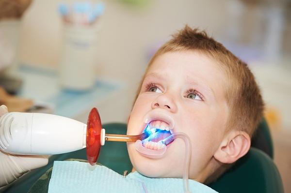 Trám răng cho bé là cần thiết khi răng sữa bị sâu nặng