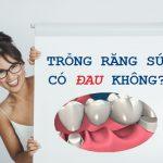 Trồng răng sứ giá bao nhiêu tiền – Bảng giá trồng răng sứ