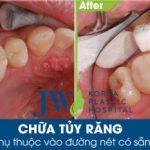 [Tư vấn] Có cần thiết phải trám răng lấy tủy không?