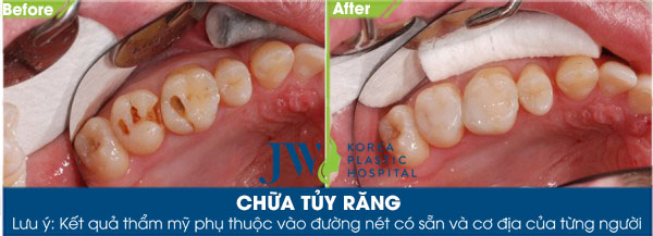 Hình ảnh khách hàng trám răng lấy tủy tại JW