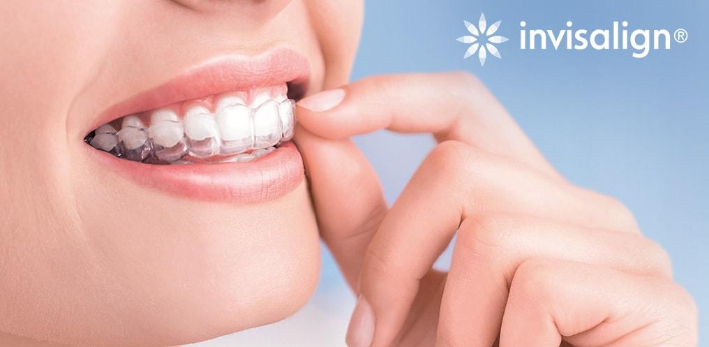 niềng răng invisalign, niềng răng vô hình