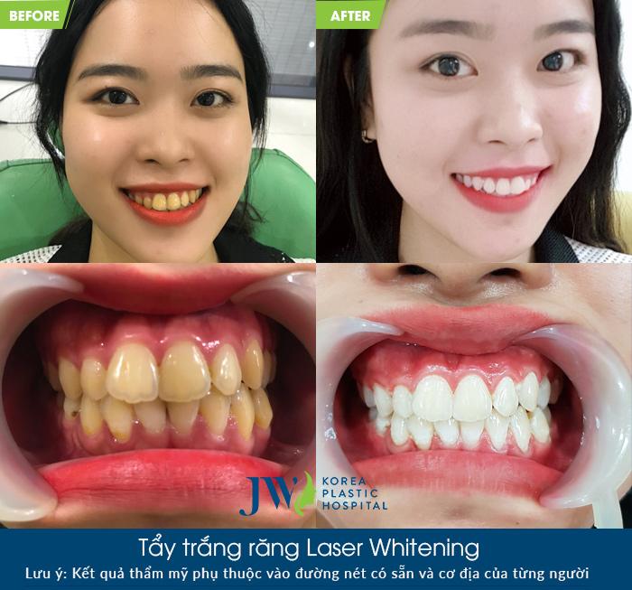 tẩy trắng răng laser whiterning