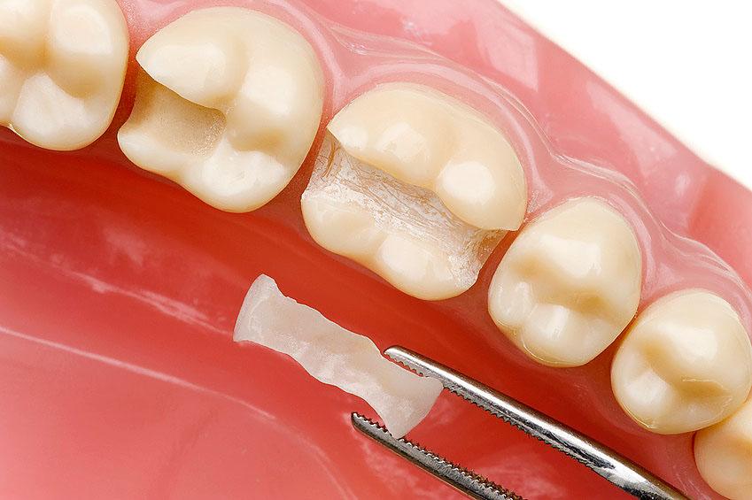 Bạn nên thay thế những vết trám, mão sứ hay cầu răng cũ sau khi tẩy trắng răng