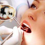 [ Giải đáp ] Trám răng bị đen phải làm sao để đúng kỹ thuật?