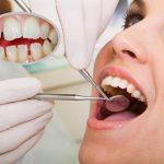 Trồng răng sứ tại Đà Nẵng ở địa chỉ nào tốt nhất