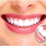 Răng sứ Zirconia – Lựa chọn tốt nhất trong phục hình răng sứ thẩm mỹ