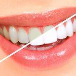 Làm trắng răng bằng Baking soda và chanh cho nụ cười tỏa sáng