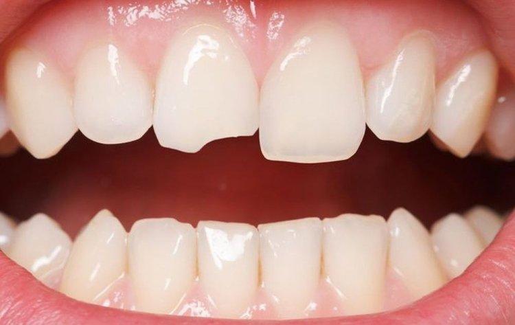 mẻ răng nên làm gì