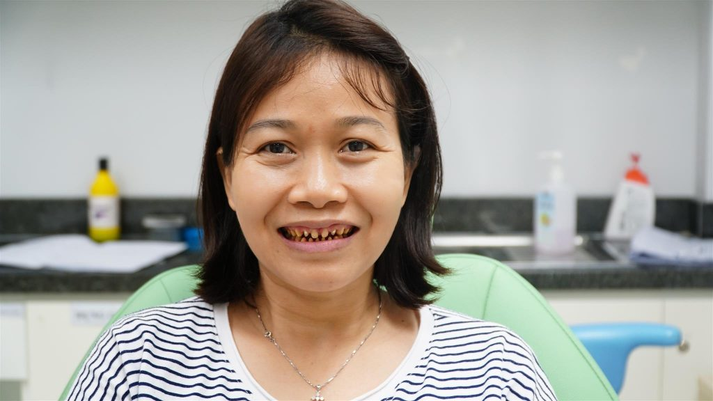 Công nghệ bọc răng sứ cũ khiến bạn phải chịu ê buốt và đau đớn khi mài gần như hết răng gốc