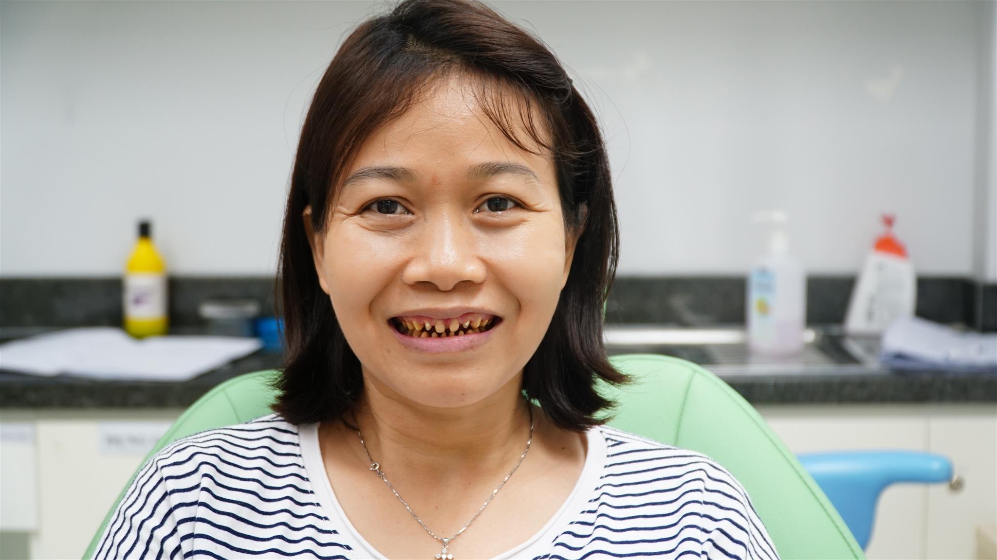 Thực hiện dán sứ không mài răng có gây ê buốt không?