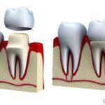 Răng kim loại với răng sứ răng nào bền hơn?