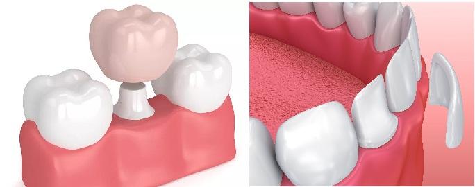 Đâu là điểm khác biệt giữa bọc răng sứ và mặt dán sứ veneer không mài răng