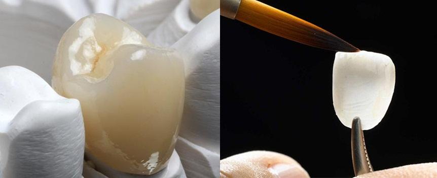 Bọc răng sứ và mặt dán sứ veneer vẫn đảm bảo chức năng và tính thẩm mỹ