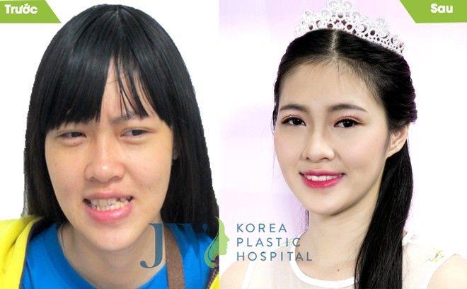 Hồng Anh trước và sau khi cải thiện diện mạo