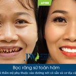 Chỉ vì mắc hạt ổi, người phụ nữ đau đớn mất cả hàm răng vì tin lời nha khoa dỏm bọc răng sứ