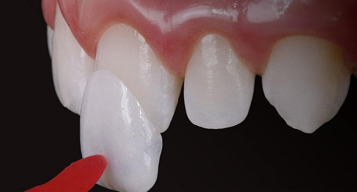 Mặt dán sứ veneer cải thiện thẩm mỹ cho hàm răng của bạn