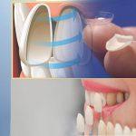 Bạn có đủ các yếu tố để thực hiện mặt dán sứ veneer không mài răng