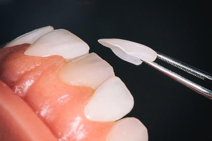 Với những hàm bảo vệ bên ngoài thị trường sẽ khiến răng veneer bị giảm tuổi thọ