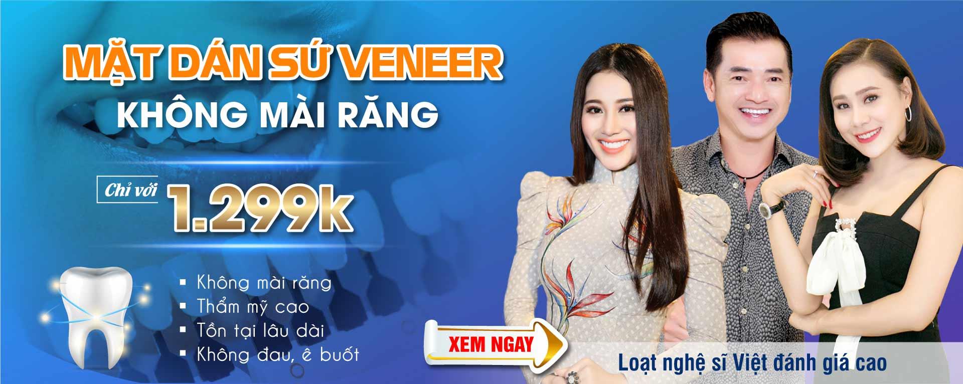 Mặt dán sứ Veneer không mài răng chỉ với 1.299K
