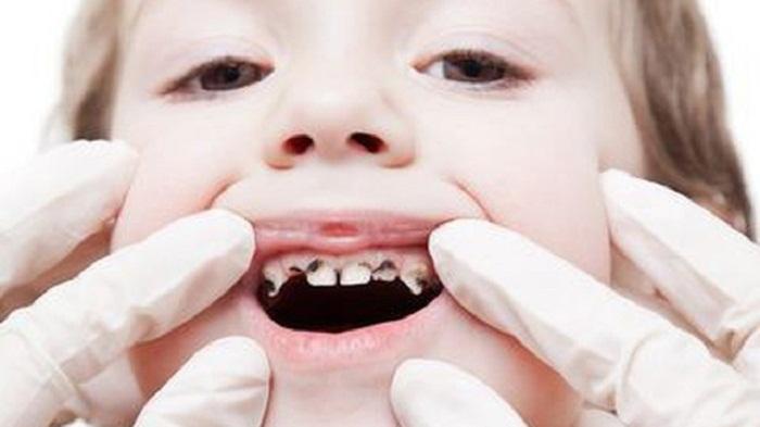 Sự thật về sâu răng ở trẻ và cách phòng ngừa hiệu quả nhất - Ảnh 1