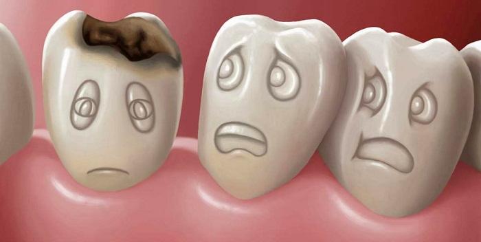 Sự thật về sâu răng ở trẻ và cách phòng ngừa hiệu quả nhất - Ảnh 3
