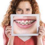 Hở lợi niềng răng có hiệu quả không ?