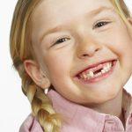 Răng mọc chậm để lâu dễ biến chứng như thế nào?