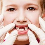 Tác hại của răng cửa mọc chậm là gì?